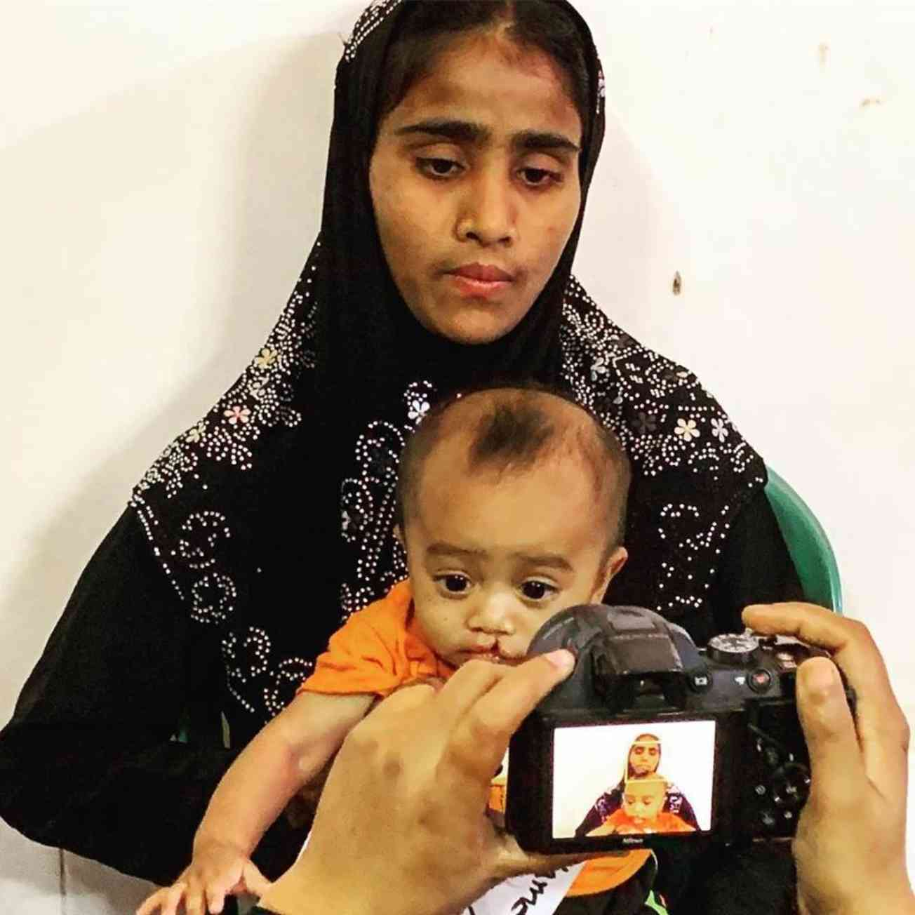 Rohingya Mother And Child With Cleft Palate In Bangladesh