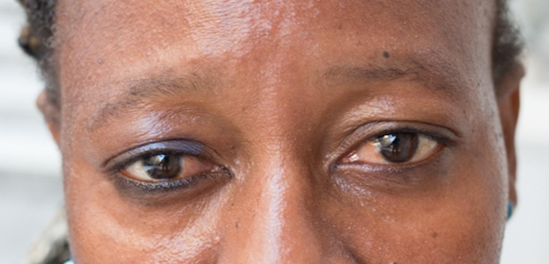 Pats Eyes