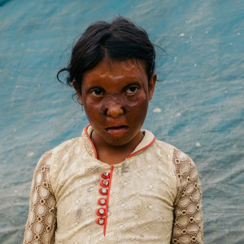PHYSICAL HEALTH ROHINGYA BURN VICTIM