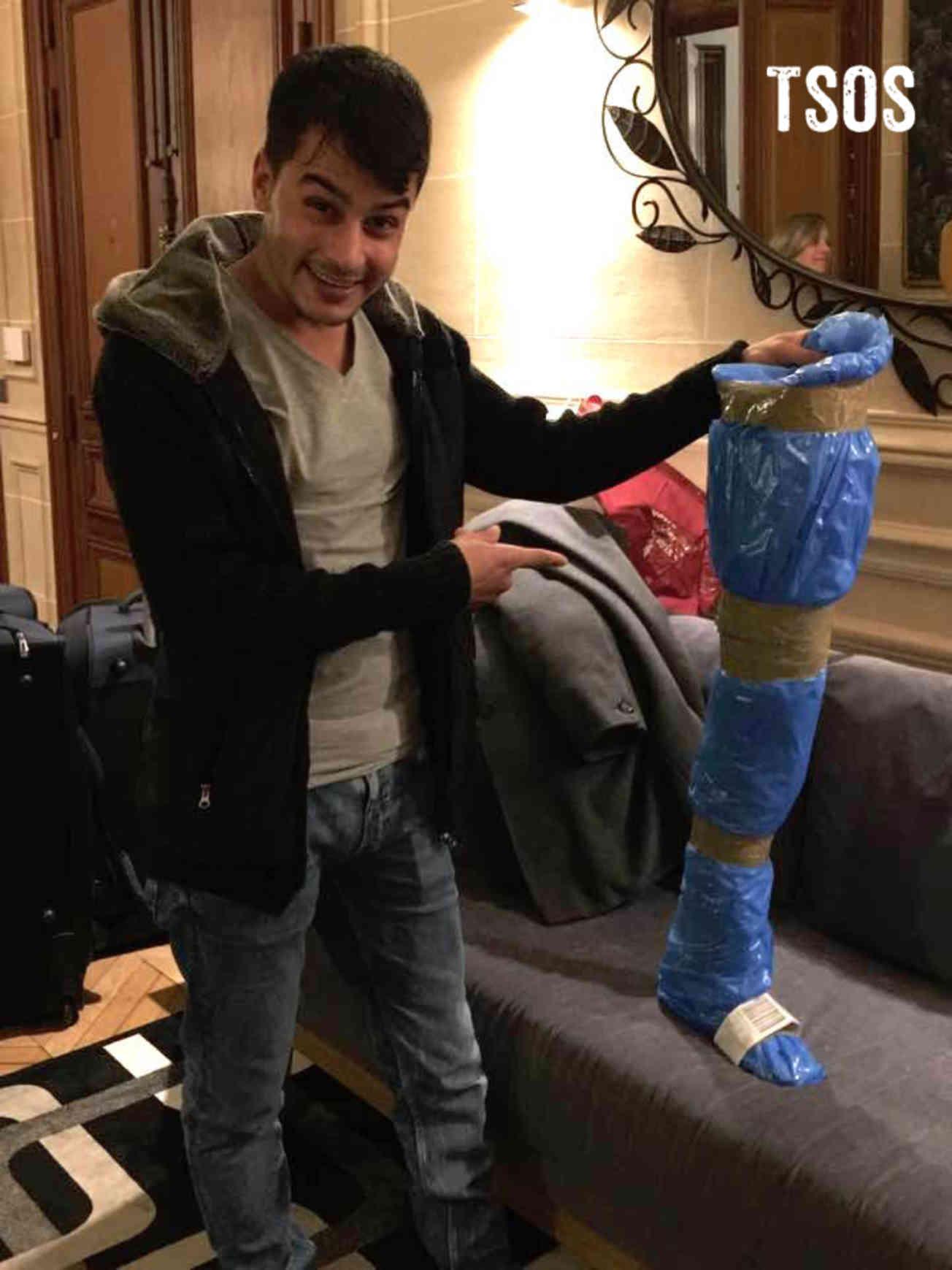 Ali With Leg